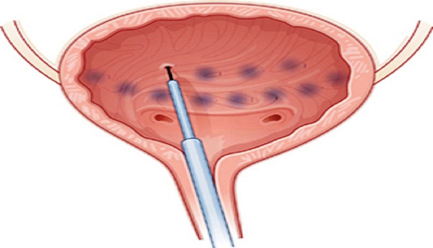Botox for Urinary Incontinence