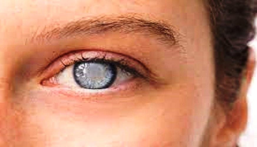 Having Cataract Surgery After Laser Eye Surgery